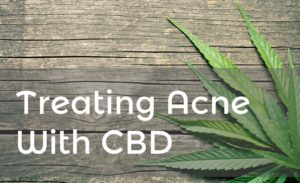 treating acne with cbd